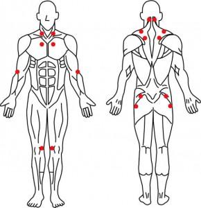 線維筋痛症の解説イラスト
