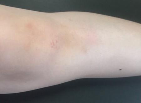 膝のイメージ画像