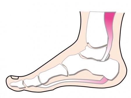 足首の骨のイメージイラスト