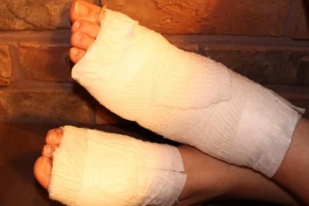 足のケガのイメージ画像