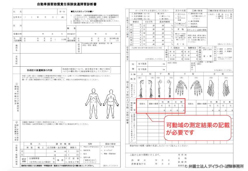 肩関節可動域制限後遺障害診断書の図